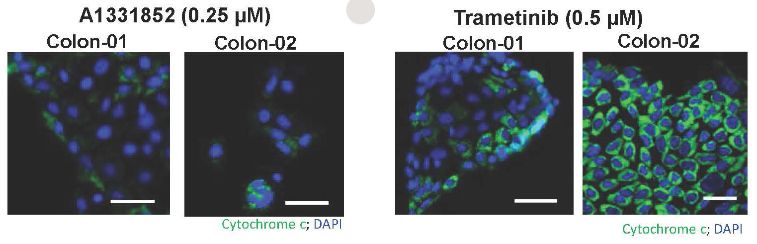 Using a small panel of drugs, the researchers found that the compounds A1331852 and trametinib increased the death of cancer cells in human colon tumours (Credit: P. Bhola et al., Science Signaling (2020))