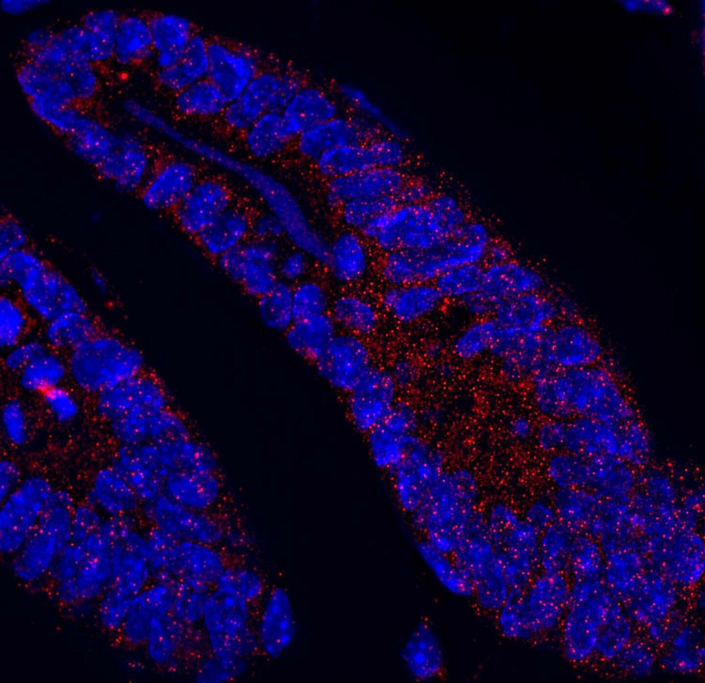Protein loss disturbs intestinal homeostasis and can drive cancer