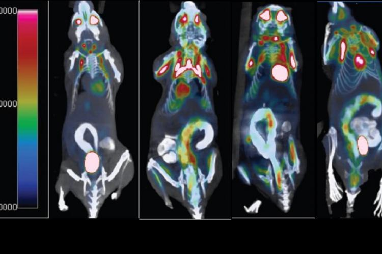 Figure shows presence of colonic tumors (MRS/AOM+DSS panel) by positron emission tomography imaging. Tumor activity is significantly diminished in the presence of the histamine-producing probiotic (L. reuteri 6475/AOM+DSS). Credit: The American Journal of Pathology