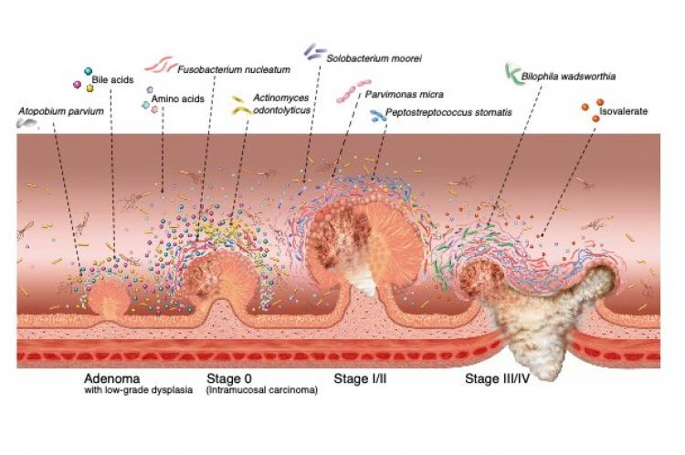 Microbial dynamics during multistep colorectal cancer progression. Graphic representation of major microbial and metabolomic alterations during multistep colorectal cancer progression. (Credit: Osaka University)