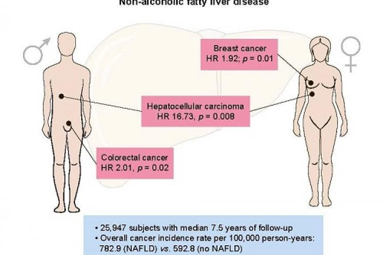 NAFLD is associated with the development of HCC, colorectal cancer in males, and breast cancer in females (Credit: Journal of Hepatology)