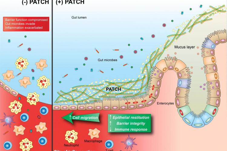 Inflammatory lesions destroy epithelial cells that function as a barrier between the inside of the gut (lumen) and the rest of the body (left). This loss of barrier function leads to a feedback cycle of worsening inflammation fueled by bacteria and other particles crossing the barrier. PATCH is a bioactive material synthesized by engineered probiotic bacteria that helps to maintain gut barrier function even in the presence of inflammatory insults, thereby helping to keep bacteria and other particulates in t