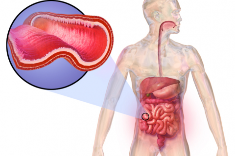 Crohn's disease (CD)