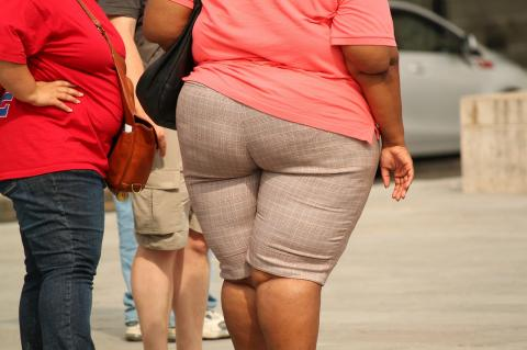 Obesity is a risk factor for colorectal cancer