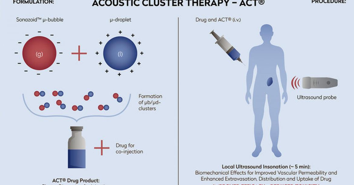 Acoustic Cluster Therapy (Credit: Phoenix Solutions)
