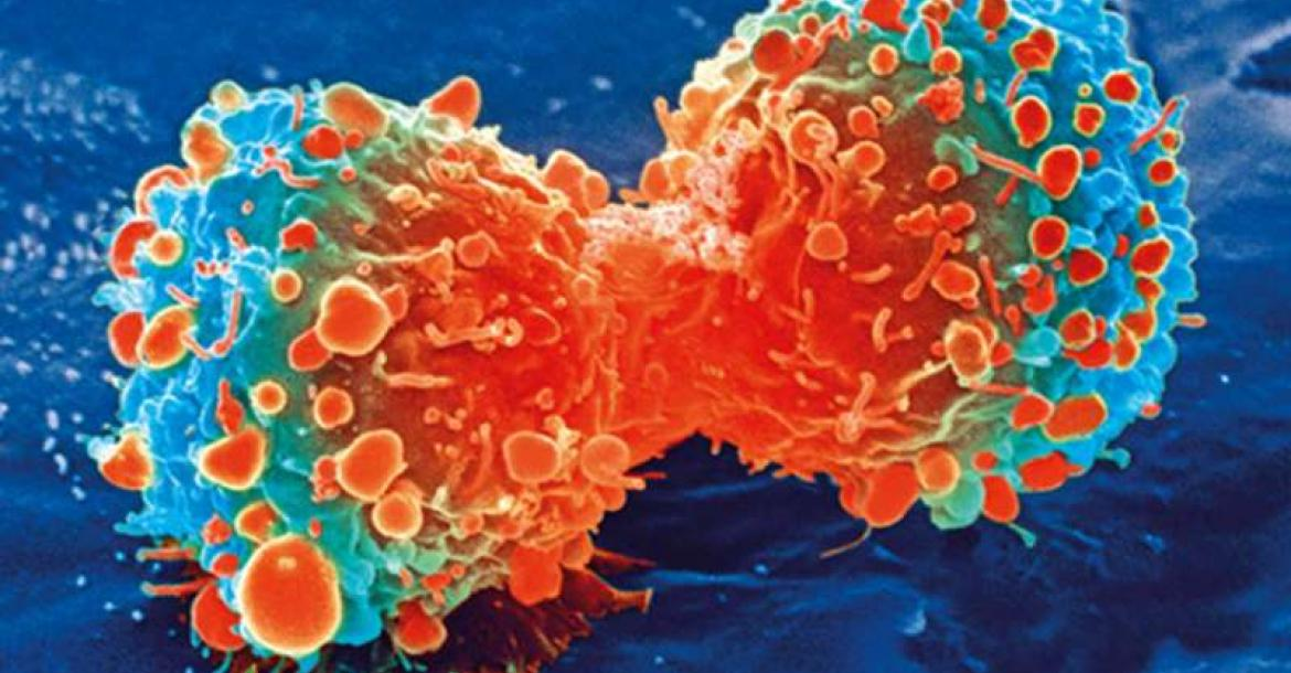 Cancer cell during cell division (Credit: National Institutes of Health)