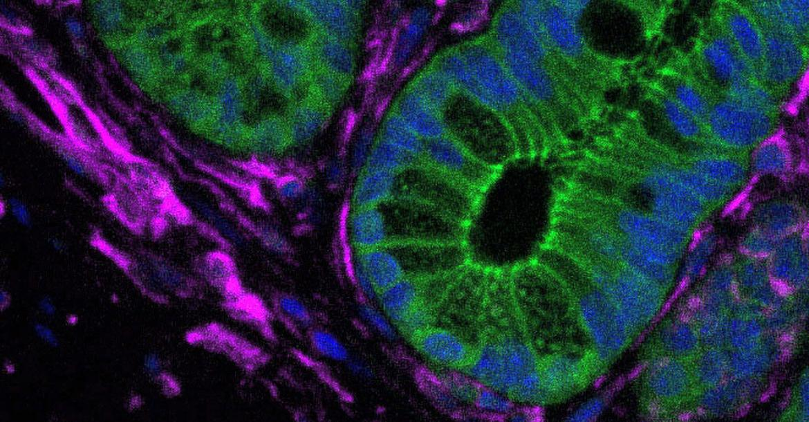 A staining for a marker of fibroblasts (purple cells) which surround epithelial cells (green) in a mouse intestine. This is the place where tumours initiate. (Credit: Yale University)