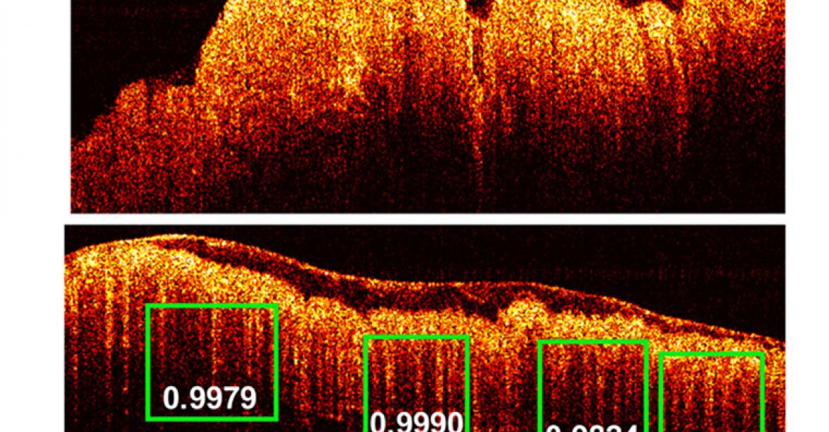 "The PR-OCT imaging detected images of colon cancer (top photo) and of normal colon tissue. The green boxes indicate the scores of probability of the predicted ""teeth"" patterns in the tissue. (Credit: Zhu Lab)"