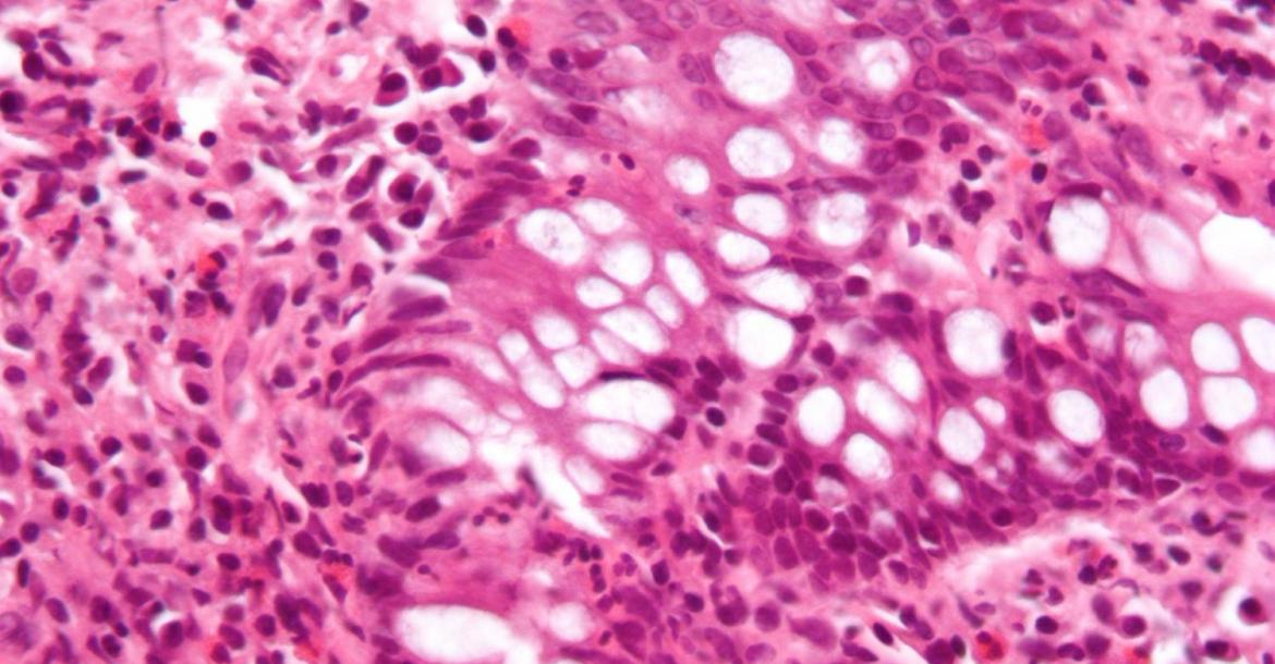 Micrograph showing inflammation of the large bowel in a case of inflammatory bowel disease. Colonic biopsy. (Credit: Wikipedia/CC BY-SA 3.0)