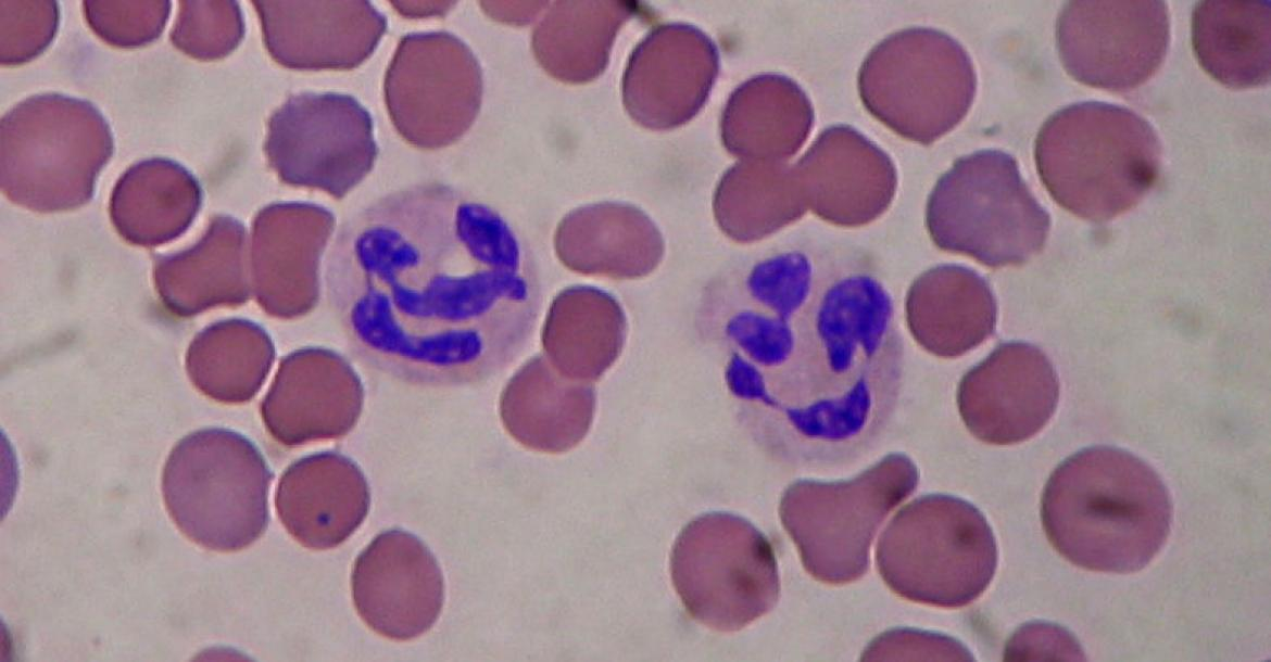 Segmented neutrophils (Credit: Mgiganteus https://creativecommons.org/licenses/by-sa/3.0/deed.en)