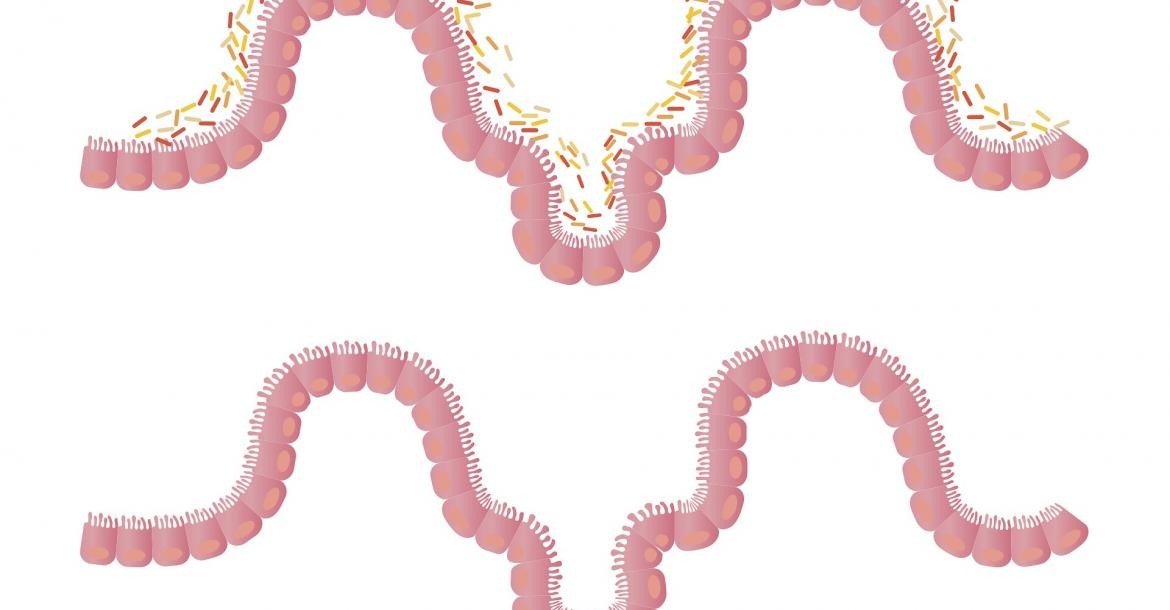 Intestinal microbiota (Credit: CC0 Public Domain)