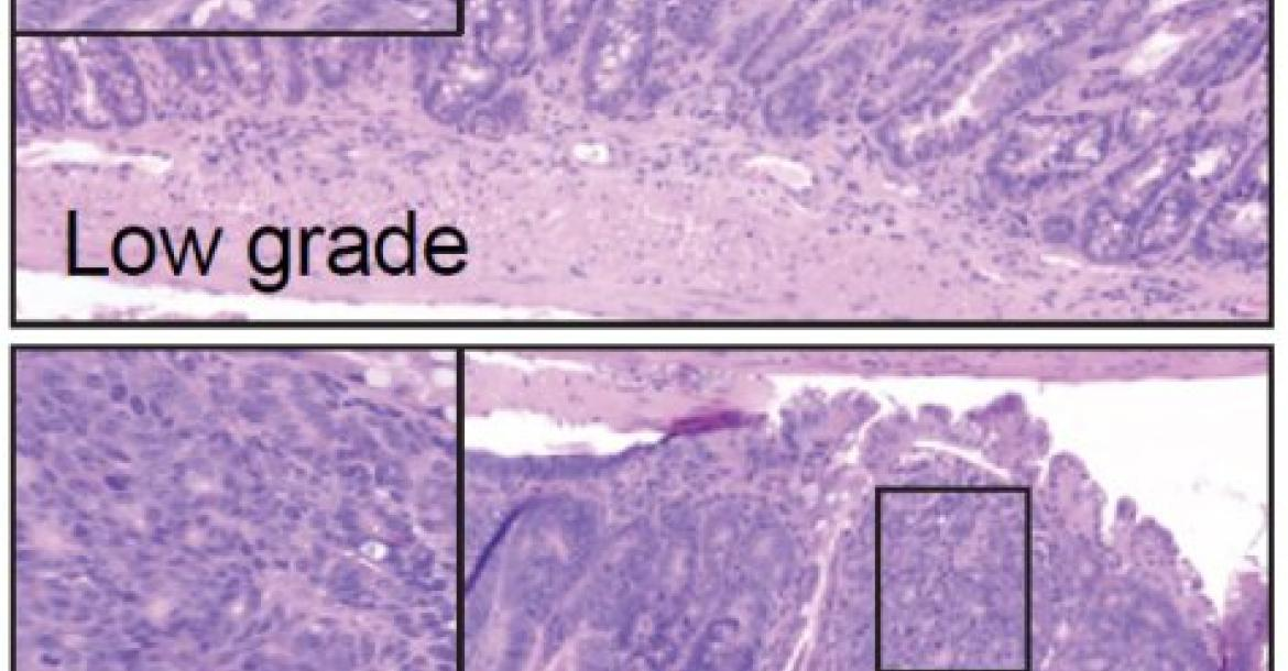 Image of two intestinal tumours, one a control (top) and one with the genes NEDD4 and NEDD4L deleted (bottom). (Credit: The Francis Crick Institute)