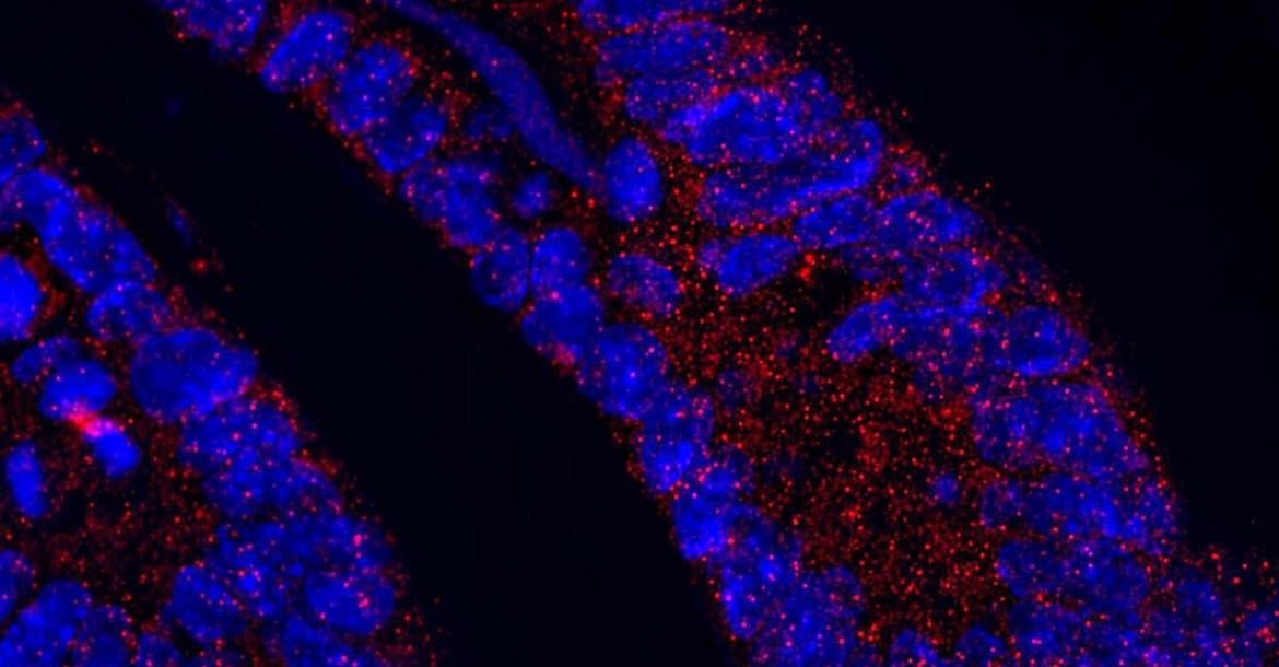 The protein MCL1 (red dots) within the small intestine of a healthy mouse. The nuclei of individual cells (blue) are also visible (Credit: Marc Healy, UZH)