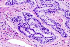 Histopathologic image of colonic carcinoid. Credit: Wikipedia/CC BY-SA 3.0