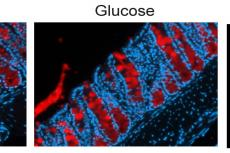 Colons from control mice and mice treated with the sugars glucose and fructose, stained for the mucin protein Muc2 (red). (Credit: S Khan et al, Science Translational Medicine 2020)
