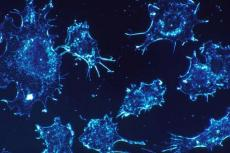 Cancer cells (Credit: Dr Cecil Fox, National Cancer Institute)